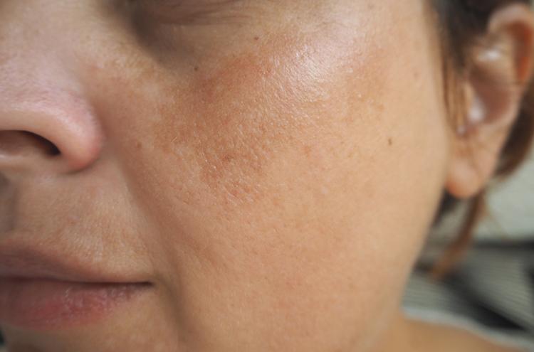 De la pigmentation sur la personne pour la peau sèche